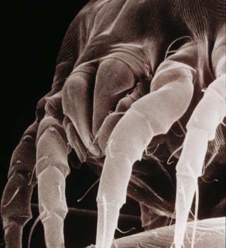 House dust mite, Dermatophagoides spp.  Photograph by: Acarology Laboratory, Ohio State University.