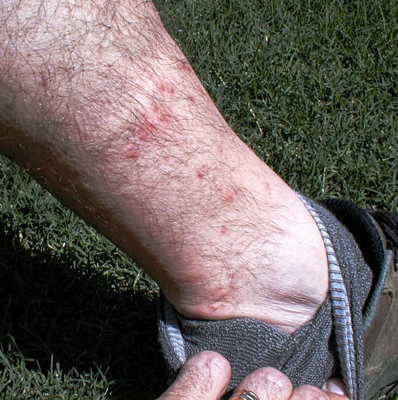 Chigger bites cause red, irritated marks on the skin. Chiggers prefer biting areas where skin is the thinnest or where clothing fits tightly, like places around the ankles and waist.  (Texas A&M Agrilife Extension Service photo by Dr. Mike Merchant)